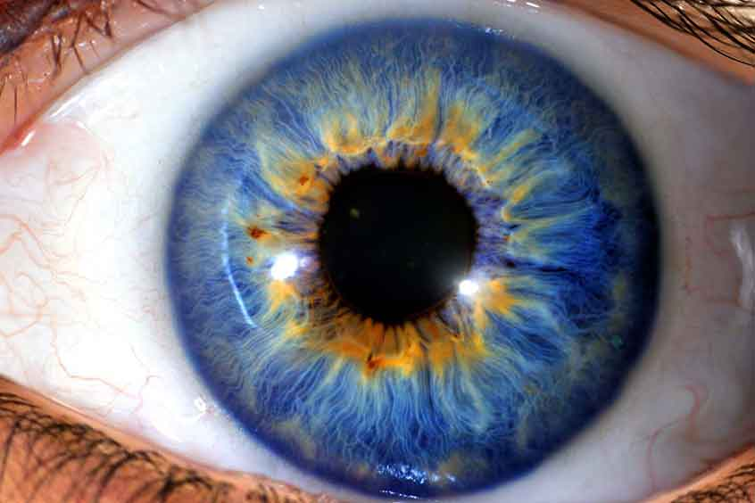 how to get rid of blue ring around iris